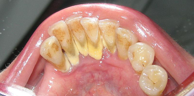 tandsten på insidan av tänderna